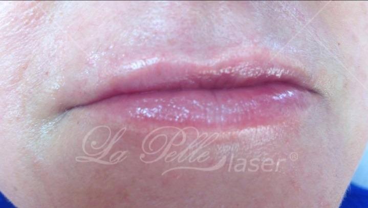 Kwas hialuronowy (Wypełnianie zmarszczek Powiększanie ust) - Szablon Revitall